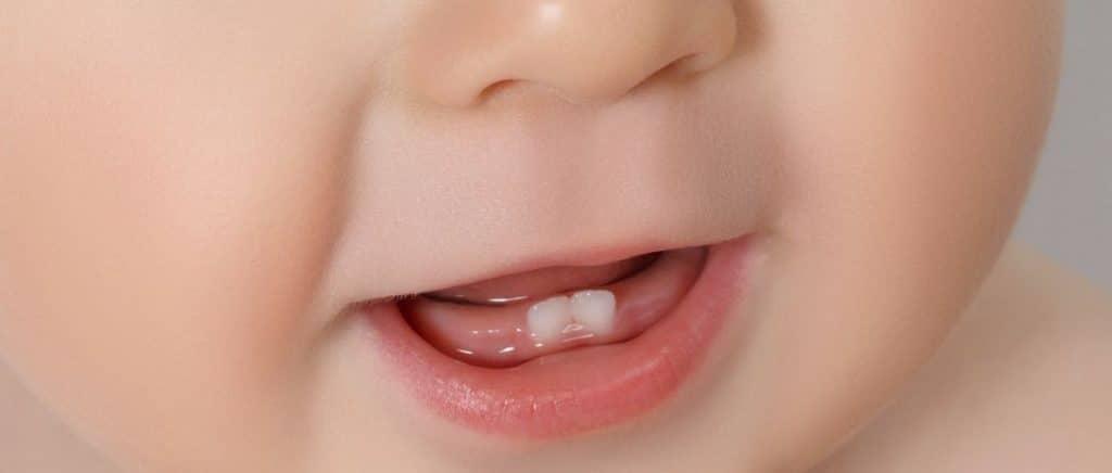 Aliviar los síntomas de la erupción dental